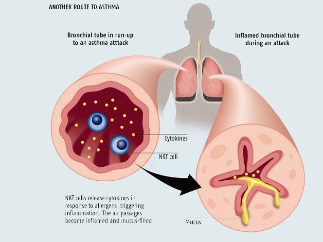 бронхиальная астма курсовая работа практическая часть